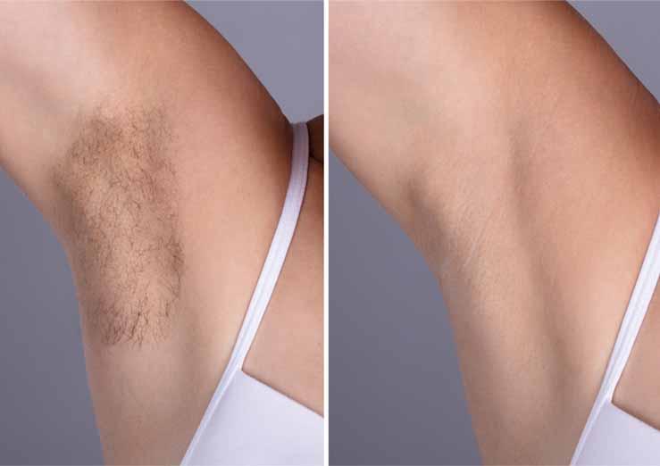 laser-hair-removal-rickmansworth