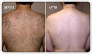 laser-hair-removal-kaija-wellness